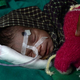 インド・ウッタルプラデシュ州で、墓の中に生き埋めにされていたところを発見され、病院で治療を受ける女児(2019年10月16日撮影)。(c)Rohit UMRAO / AFP