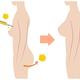見た目や手触りが自然な胸の整形手術法はどんなものがあるの?