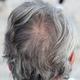 現役美容師が教える白髪のメカニズム