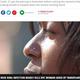 小さな鼻ピアスが原因で劇症肝炎に罹った女性(画像は『Mirror 2021年2月26日付「Woman's nose piercing infection led to urgent liver transplant after organ rotted」』のスクリーンショット)