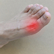 足の指の付け根に痛みを抱える患者の足