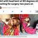 首が90度曲がったままのパキスタンの少女(画像は『Metro 2019年7月11日付「Girl with head bent at 90 degrees still waiting for surgery two years on」(Picture: Caters)』のスクリーンショット)