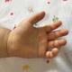 大流行中の「手足口病」に予防法はあるの?