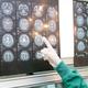 """からだエイジング : 受けるべきは健診より""""検診""""! 最新「脳ドック」体験レポート"""