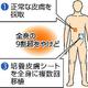 京アニ放火殺人事件の容疑者は死亡率95%超 繰り返し諭した医師